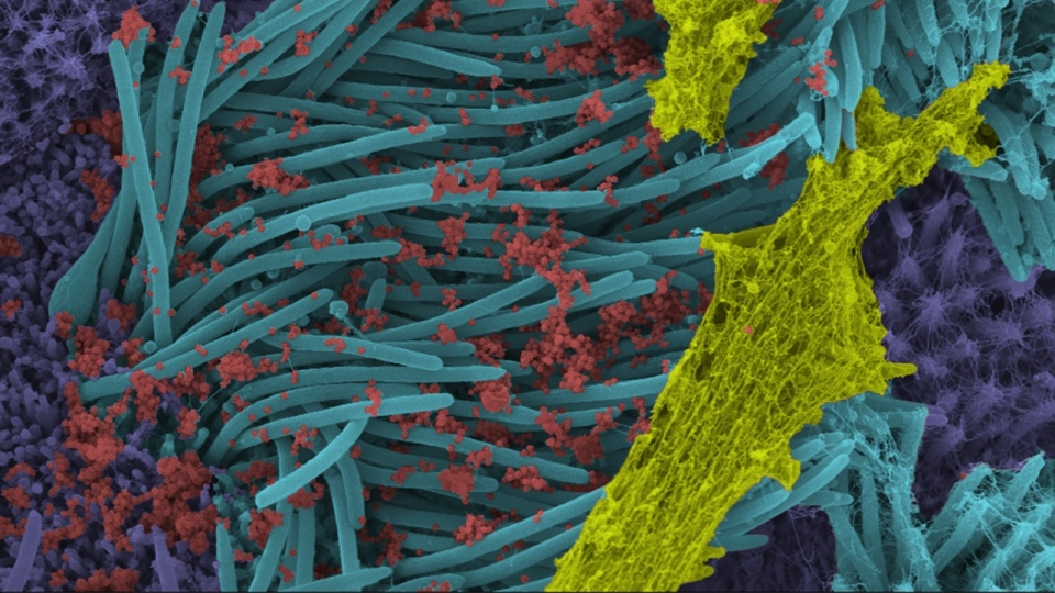 A higher power magnification image shows the structure and density of SARS-CoV-2 virions (red) produced by human airway epithelia. (Photo: Ehre Lab, UNC School of Medicine)