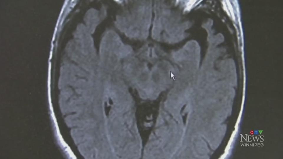 Strokes may be a symptom of COVID-19