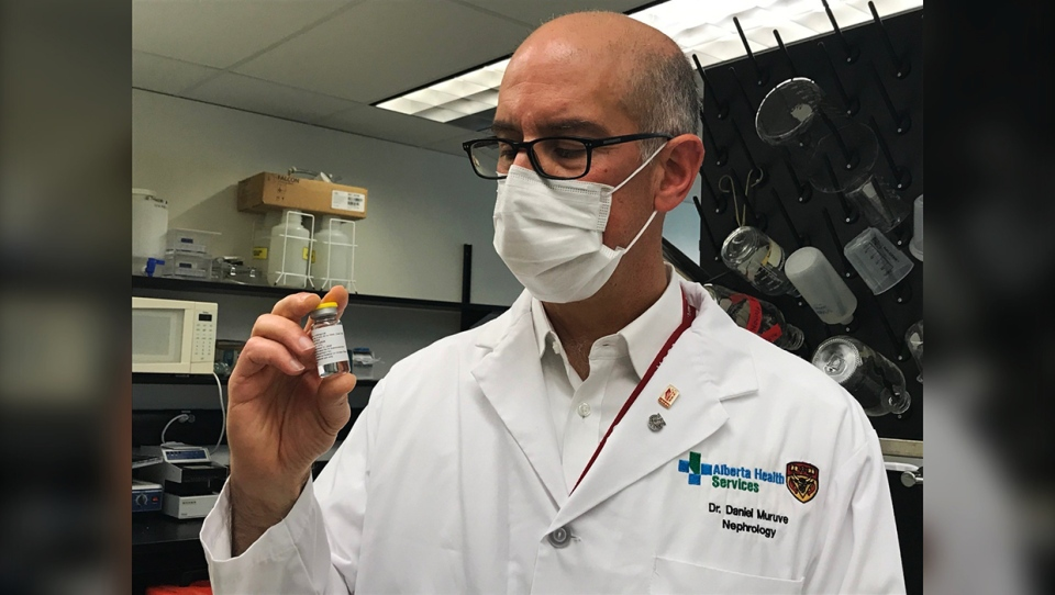 Dr. Daniel Muruve, head of nephrology at University of Calgary and chief science officer for Arch Biopartners Inc., holds up a vial of LSALT peptide, a drug that is being studied for reducing inflammation in COVID-19 patients.""