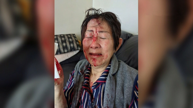 Elderly woman attacked in own home
