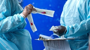 FILE - In this July 23, 2020, file photo, health care workers prepare a COVID-19 test sample before a person self-administered a test at the COVID-19 drive-thru testing center at Miami-Dade County Auditorium in Miami as the novel coronavirus pandemic continues. As coronavirus cases surge in hard-hit Florida, so do the turnaround times for test results. (David Santiago/Miami Herald via AP)