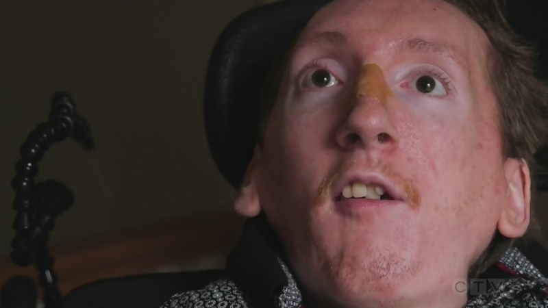 """I hope I'm inspiring people to not give up."" Adam meets a Saanich man living with a degenerative disease who's using unique technology to express kindness and creativity."