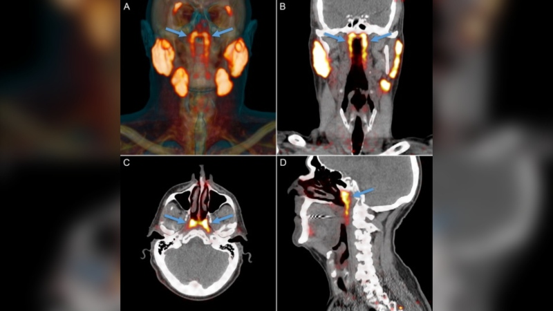 Researchers from the Netherlands Cancer Institute (NCI) say they found the new salivary glands in the upper part of the throat behind the nose while carrying out research on prostate cancer. (Netherlands Cancer Institute/Radiotherapy and Oncology)