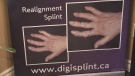 Realignment Splint from DigiSplint in Exeter, Ont.