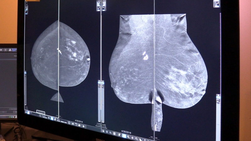 A triple negative breast cancer, a form of cancer that makes up 20 per cent of all breast cancer cases also often ends up in the patients lungs (Celine Zadorsky / CTV News)