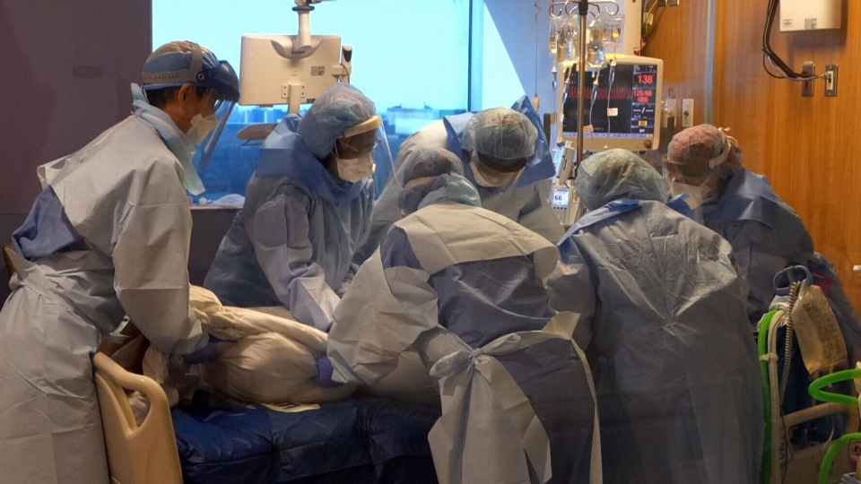 A team in the intensive care unit of Toronto's Humber River Hospital helps a patient with COVID-19 on Friday, April 17, 2020.
