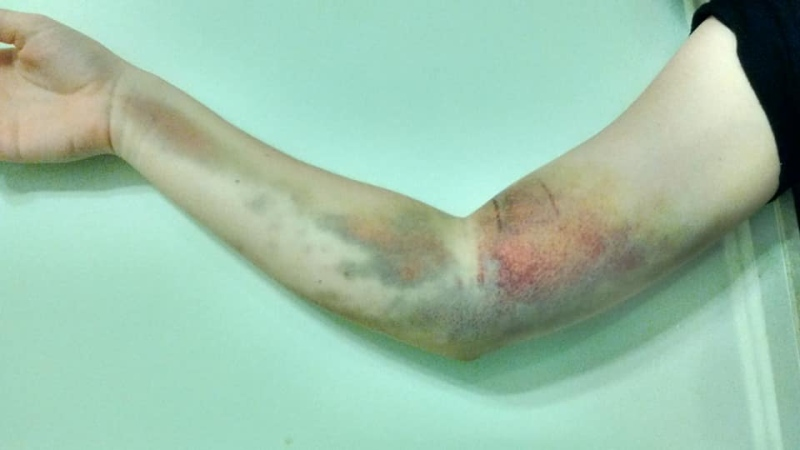 Gabriella Ekman experienced severe bruising on her arm a few weeks after she donated blood. (Gabriella Ekman)