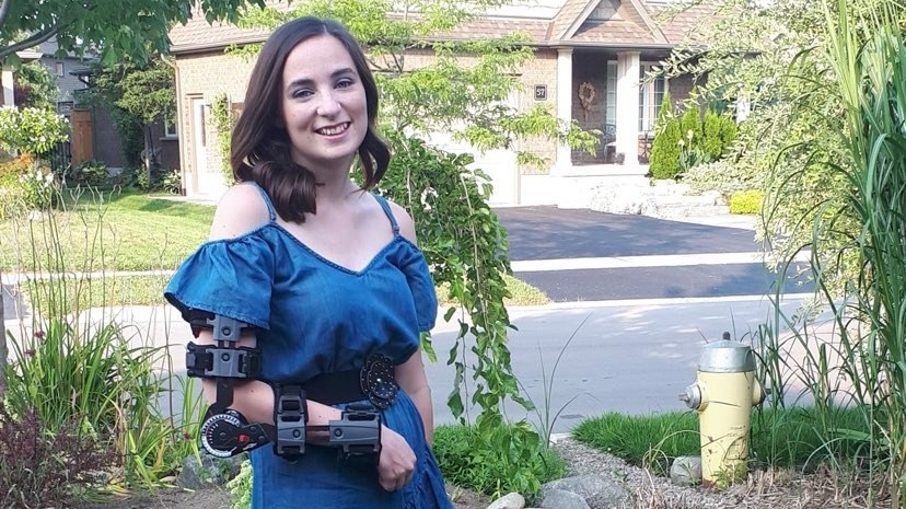 Gabriella Ekman wears a brace to hold up her arm because she is unable to straighten it anymore. (Gabriella Ekman)