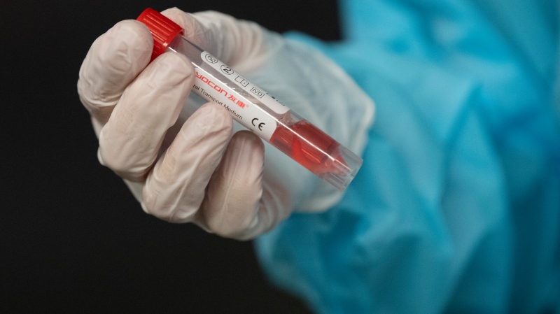 A nurse holds a vial containing a patients test swab during a demonstrates of the drive-thru Covid-19 testing centre at the National Arts Centre Wednesday November 18, 2020 in Ottawa. The testing centre replaces an outdoor facility in the city in preparation for winter. THE CANADIAN PRESS/Adrian Wyld
