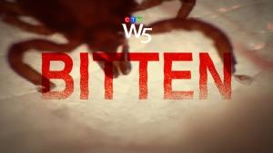 W5: Bitten