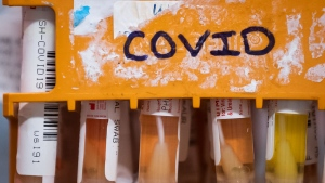 FILE - Specimens to be tested for COVID-19 are seen at LifeLabs after being logged upon receipt at the company's lab, in Surrey, B.C., on Thursday, March 26, 2020. (THE CANADIAN PRESS/Darryl Dyck)