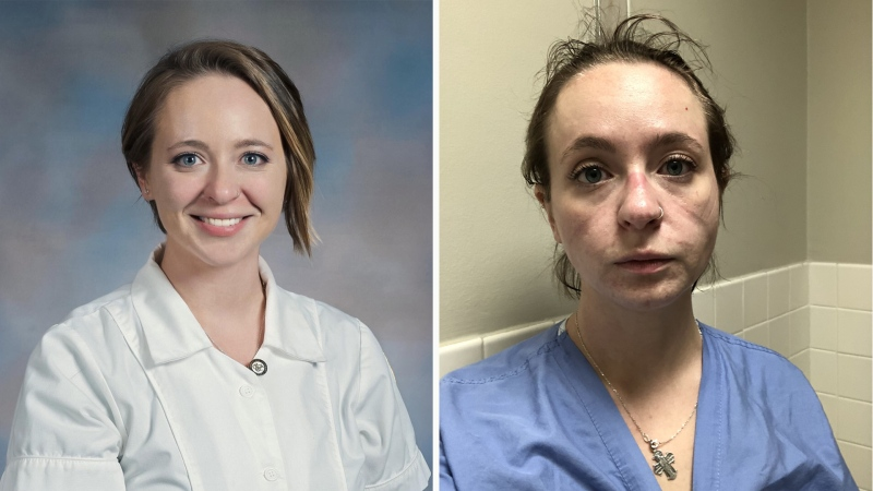 Kathryn, an ICU nurse in Nashville, Tenn., shared before-and-after photos of herself on Twitter during the pandemic. (@Kathryniveyy / Twitter)