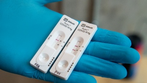 An Abbott Laboratories Panbio COVID- 19 Rapid Test device is displayed at a pop-up COVID-19 testing site on the Dalhousie University campus in Halifax on Wednesday, Nov. 235 2020. THE CANADIAN PRESS/Andrew Vaughan