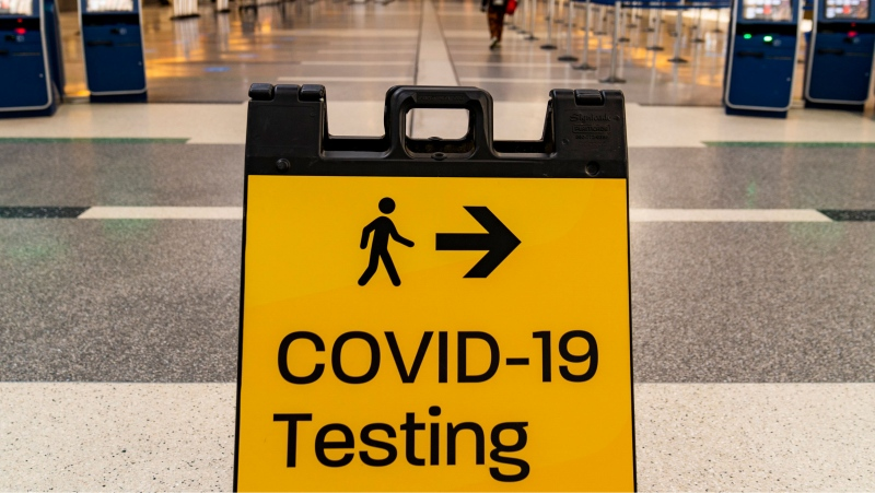 A COVID-19 testing sign is posted at the empty Tom Bradley International Terminal at Los Angeles International Airport Wednesday, Nov. 25, 2020. California residents were urged to avoid nonessential travel during what is typically the busiest travel period of the year. Anyone entering California was advised to quarantine for two weeks. (AP Photo/Damian Dovarganes)