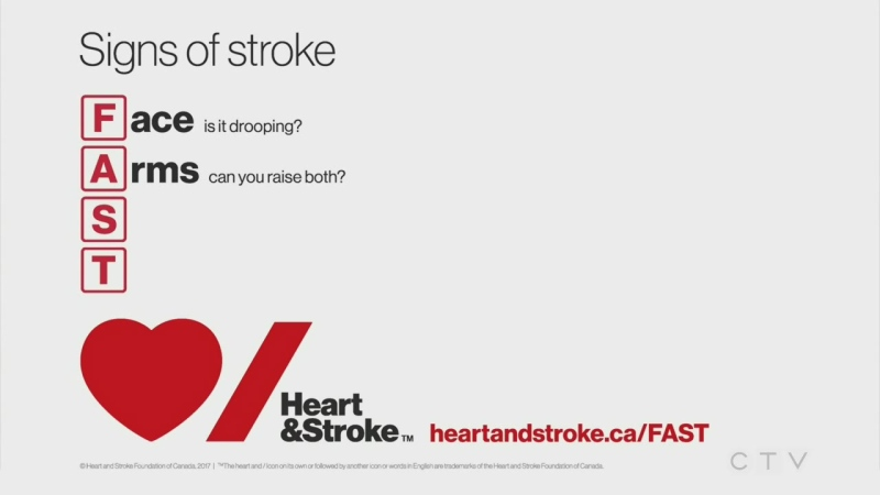 Heart and Stroke FAST