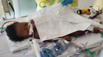 Toddler recovering after swallowing battery