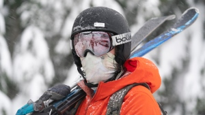 A skier wears a protective face mask to help prevent the spread of Covid-19 during the first day of the downhill ski season at Cypress Mountain in West Vancouver, B.C. Friday, November 13, 2020. (THE CANADIAN PRESS/Jonathan Hayward)