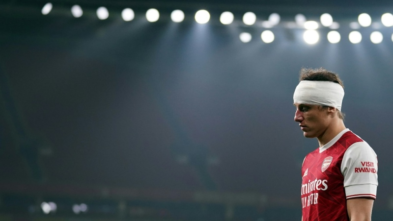 Premier League clubs have agreed to a trial of permanent concussion substitutes. (AFP)