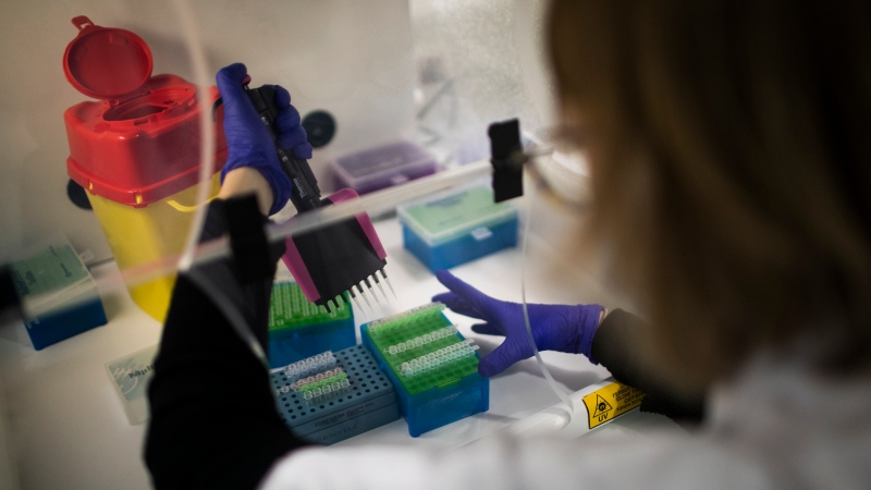 Microbiologist Marielle Bedotto-Buffet prepares a sample at the University Hospital Institute for Infectious Diseases in Marseille, southern France, Wednesday Jan. 13, 2021, to study the highly contagious COVID-19 variant that has been discovered in the UK.  (AP Photo/Daniel Cole)