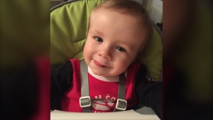 13-month-old Brandon Fraser was admitted to the Alberta Children's Hospital in late December to be treated for his extremely rare from of epilepsy. (Supplied/Fraser Family)