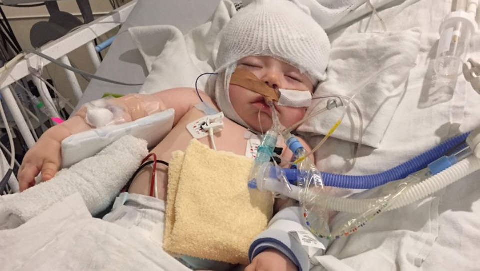 Brandon was first diagnosed when he was seven months old, but doctors soon discovered that the boy's genetic mutation is novel to researchers. (Supplied/Fraser Family)