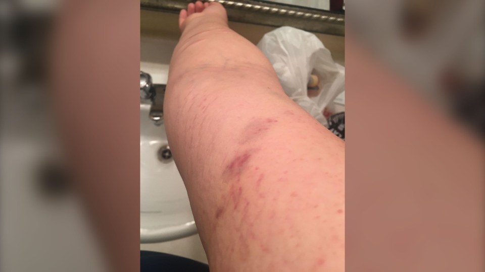 Emily Kammermayer is alleging RCMP officers assaulted her. (Submitted photo)