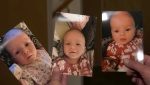 A Calgary family are grateful to people for helping them buy a special helmet to protect baby Mikylah Rose, who has a rare cognitive disorder