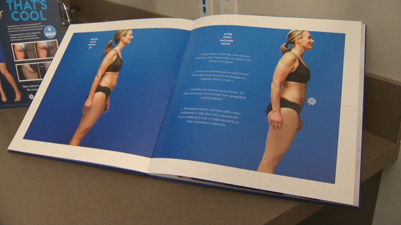 Sculpt your Silhouette with Coolsculpting with guidance from the experts at Dermapure Calgary