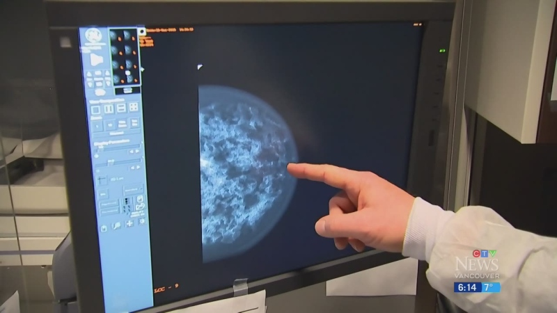 Cancer diagnoses dropped during pandemic