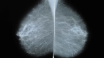 Tales of unnecessary biopsies spurred the patient care committee of the Society of Breast Imaging (SBI) to put out an advisory in January. (Shutterstock via CNN)