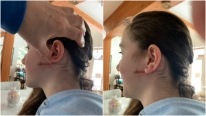 One of Carolyn Bachler's injuries is shown in a photo provided by her family to CTV News.