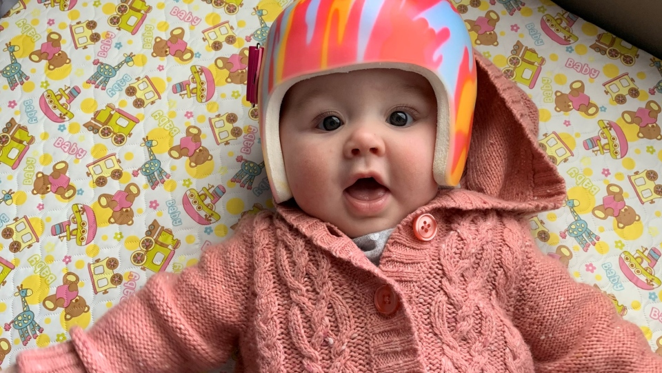 Kallie Fackoury was fitted for a helmet to help with her torticollis (Supplied: Lyndsey Fackoury)