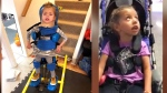 Rian is one of two Canadian girls who have received a new gene therapy for children suffering from 'pediatric Parkinsons', a rare disorder that makes children unable to support their own head and plagues them painful episodes that can last hours long.
