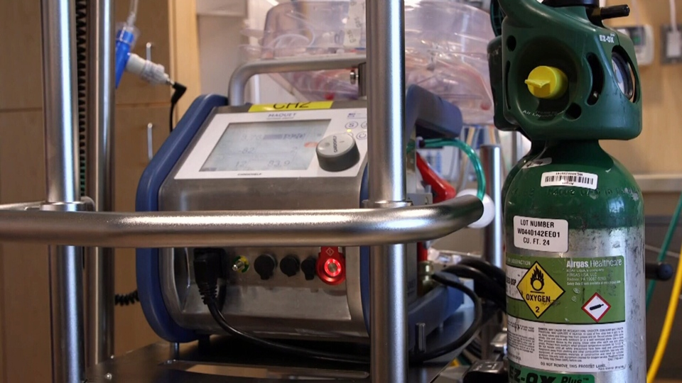 ECMO -- which stands for extracorporeal membrane oxygenation -- is a type of care that works to provide oxygen to a patient's blood in order to allow their lungs to heal. It's only available at a handful of hospitals.