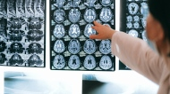 Brain scans are shown in this file photo. (Anna Shvets / Pexels)