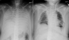 This combination of radiographs provided on April 9, 2021, by Kyoto University Hospital, shows the chest of a patient before the surgery, left, and after the surgery, right. (Kyoto University Hospital via AP)