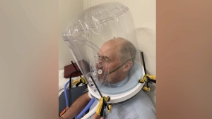 "Canadian team developing ""non-invasive"" ventilator"