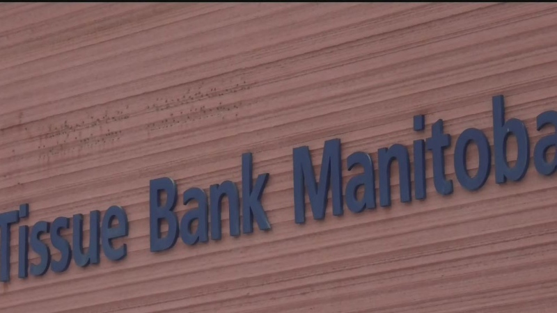 Tissue banks in Manitoba merge