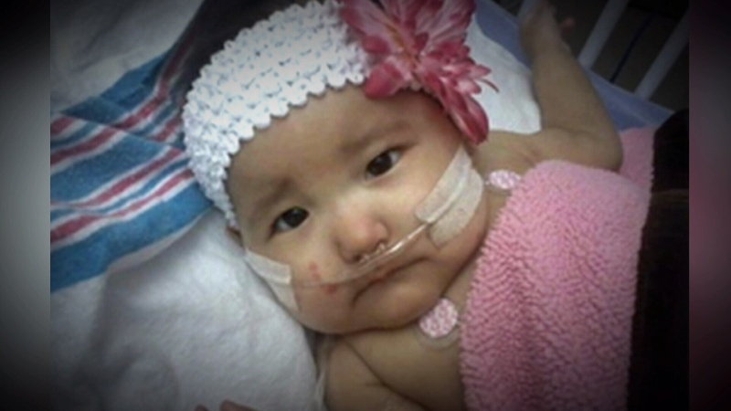 """For seven months doctors didn't know why Kianna Simaganis was sick, they tested Kianna for everything, until she was finally diagnosed with a rare genetic disease, known as Severe Combined Immunodeficiency (SCID), more commonly known as """"bubble boy"""" disease, the most severe type of immune deficiency disorder found in infants."""