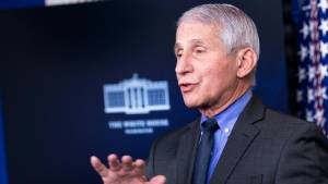 Top US COVID-19 advisor Anthony Fauci says there is 'no doubt' that the nation's virus toll is higher than reported. (AFP)