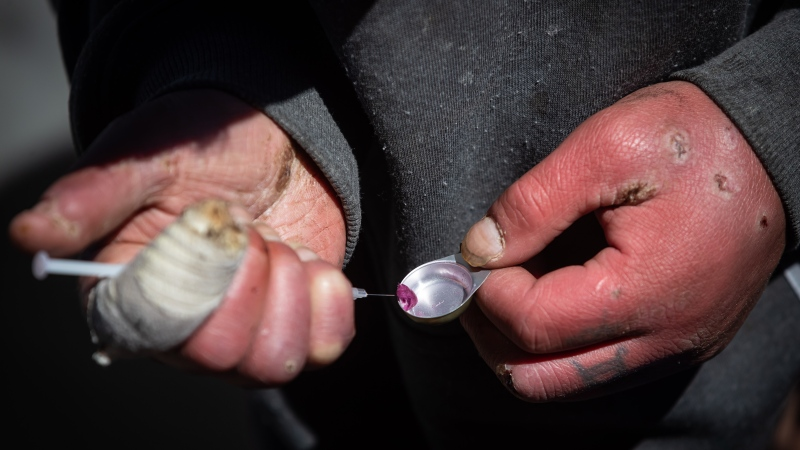 A man draws an unknown illicit substance into a syringe before injecting it into his arm on the five-year anniversary of British Columbia declaring a public health emergency in the overdose crisis, in Vancouver, on Wednesday, April 14, 2021. (Darryl Dyck / THE CANADIAN PRESS)