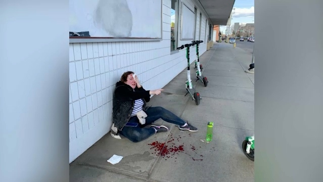 Courtesy: Claire Meeker, 22, injured in a Lime scooter incident in Old Strathcona.