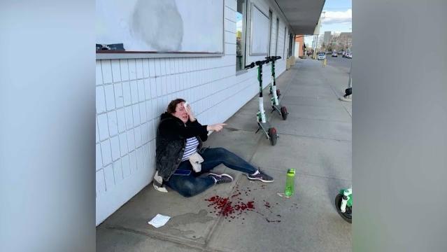 Lime scoot crash