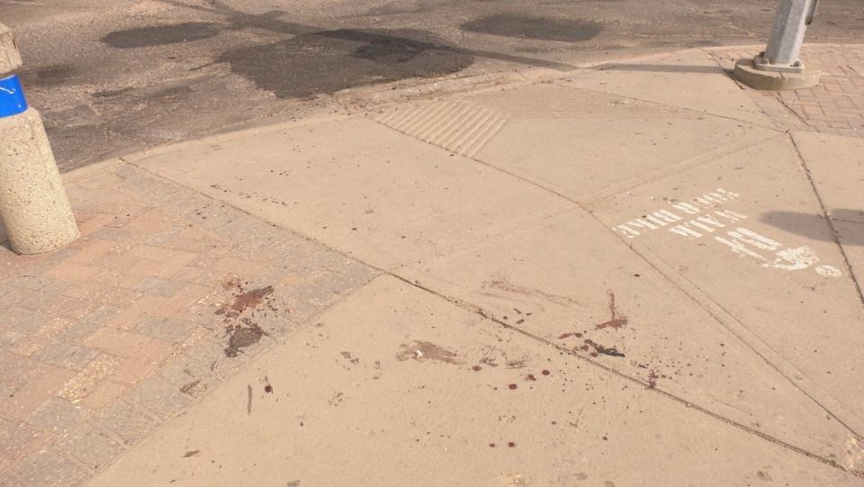 Saskatoon city workers attacked