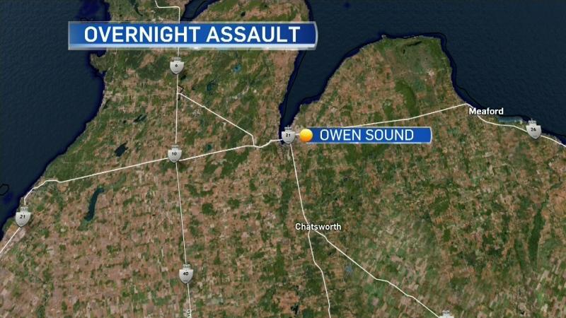 One man assaulted in Owen Sound