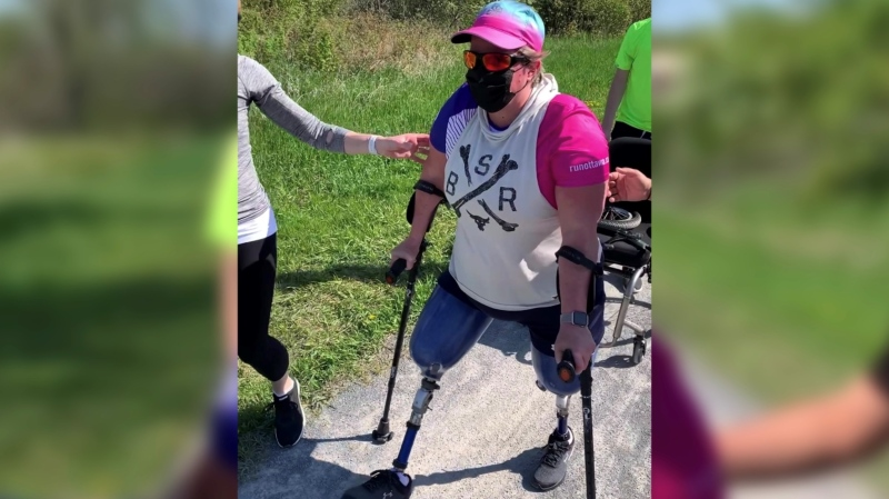 Marcie Stevens, a Westboro bus crash survivor, walked two kilometres on her prosthetic legs on Sunday as part of the virtual race weekend this month. Ottawa, On. May 16, 2020. (Photo courtesy Marcie Stevens)