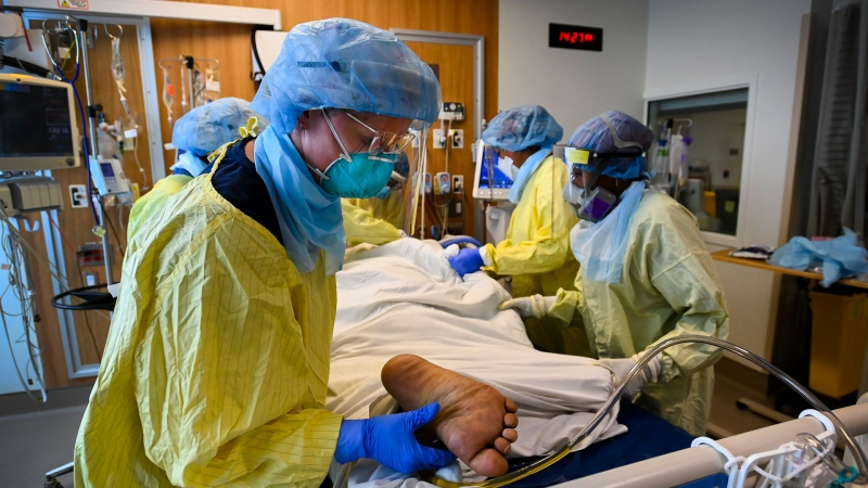 Health-care workers turn a COVID-19 patient in the ICU who is intubated and on a ventilator from his back to his stomach at the Humber River Hospital during the COVID-19 pandemic in Toronto on Wednesday, December 9, 2020. THE CANADIAN PRESS/Nathan Denette