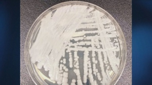 drug-resistant fungal infection spreading in Canad