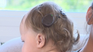 Update on Manitoba's youngest cochlear implant rec