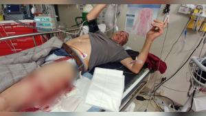 Coquitlam man survives bear mauling